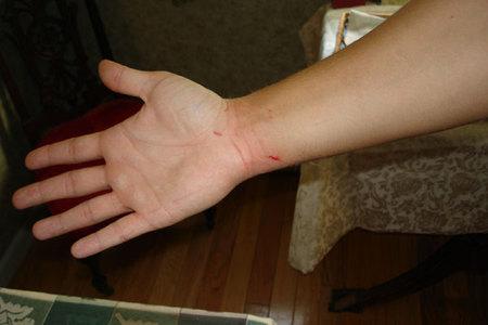 Bleed4u2
