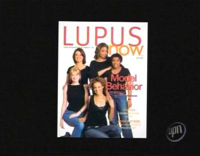 Lupus_now